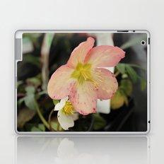 Beauty Part 2 Laptop & iPad Skin