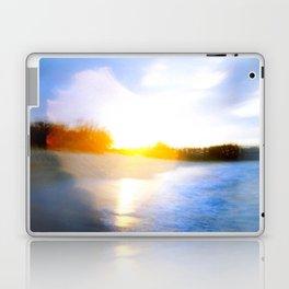 Sun Love Laptop & iPad Skin