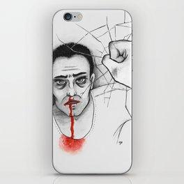 Bernat iPhone Skin