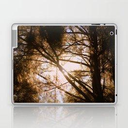 Sunlit Dreams Laptop & iPad Skin