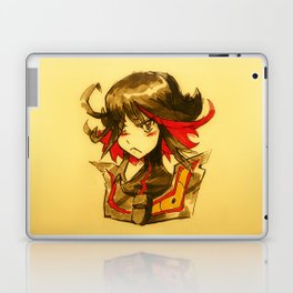 KLK Laptop & iPad Skin