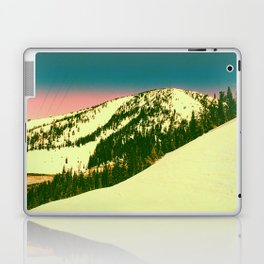 ~~~~~ Laptop & iPad Skin
