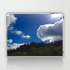 Sunny Clouds Laptop & iPad Skin