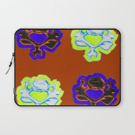Vertebrae 2 Laptop Sleeve
