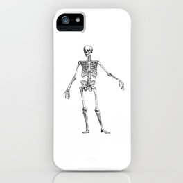 No body to dance with - skeleton iPhone Case