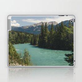 Tête Jaune Cache Laptop & iPad Skin