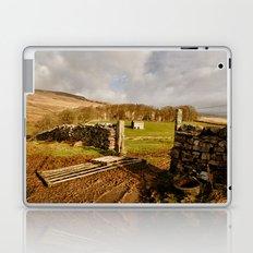 Appersett Laptop & iPad Skin