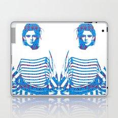Fashion: Stripes Laptop & iPad Skin