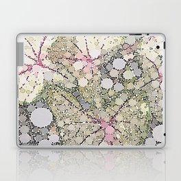 :: Tomorrow Will Be Kinder :: Laptop & iPad Skin
