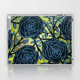 Black and Blue Laptop & iPad Skin