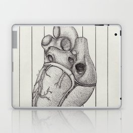 Anatomy of the Heart Laptop & iPad Skin