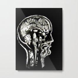 January 1, 2016 (Year of Radiology) Metal Print