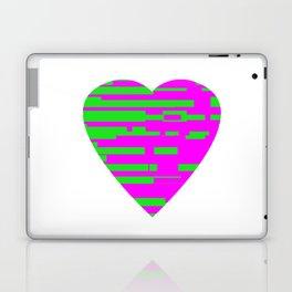Glitching Hearts — Pink and Green Laptop & iPad Skin