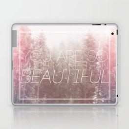 More Than Laptop & iPad Skin
