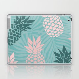 Tropical Pineapple and Palm Leaf Pattern, Teal and Pink Laptop & iPad Skin