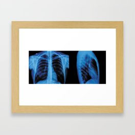 thorax x-ray Framed Art Print