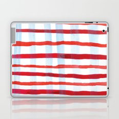 Plaid Laptop & iPad Skin
