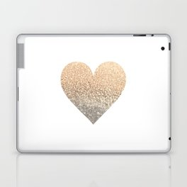 GOLD HEART Laptop & iPad Skin