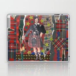 Bonnie Lad & Plaid by Nettwork2Design Nettie Heron-Middleton Laptop & iPad Skin
