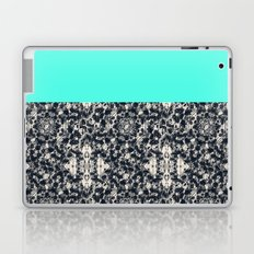 Modern Lace & Aqua Laptop & iPad Skin