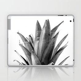 Pineapple Head Laptop & iPad Skin