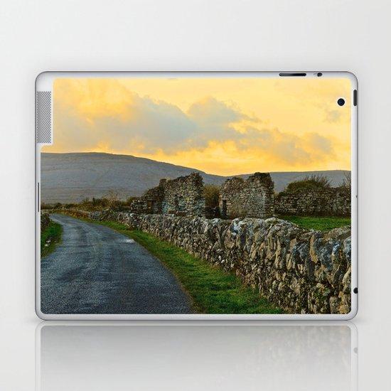 The Road Back to Dublin Laptop & iPad Skin