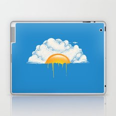 Breakfast Laptop & iPad Skin
