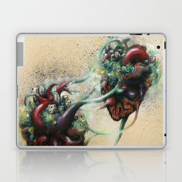 Arrested Vascular Fusion of Two Entities in Need Laptop & iPad Skin