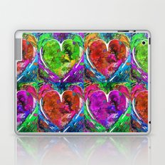 Colorful Pop Hearts Love Art By Sharon Cummings Laptop & iPad Skin