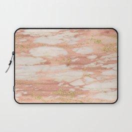 Sorano rose gold marble Laptop Sleeve