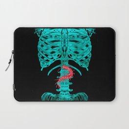 Nervous Human Xray Laptop Sleeve