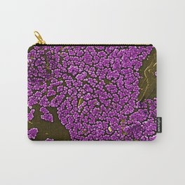 Clumps of Methicillin-Resistant Staphylococcus Aureus Bacteria Carry-All Pouch