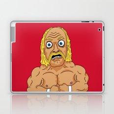HULKAMANIA  Laptop & iPad Skin