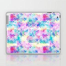 Pineapple Dream Laptop & iPad Skin