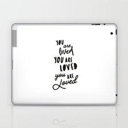 you are loved you are loved you are LOVED Laptop & iPad Skin