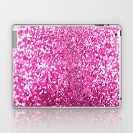 Pink sparkles Laptop & iPad Skin