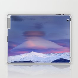 Lenticular Laptop & iPad Skin