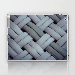 Oh, braid! Laptop & iPad Skin