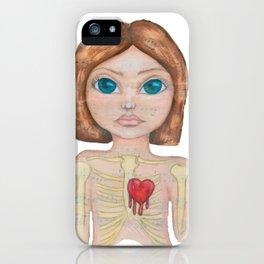 Anatomy of pain iPhone Case