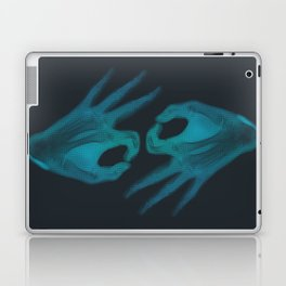 X-Ray I'm OK Laptop & iPad Skin