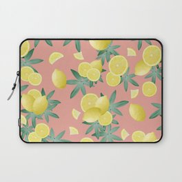 Lemon Twist Vibes #2 #tropical #fruit #decor #art #society6 Laptop Sleeve