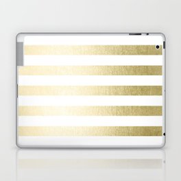 Simply Striped Gilded Palace Gold Laptop & iPad Skin