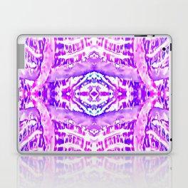 Catching The Elusive Laptop & iPad Skin