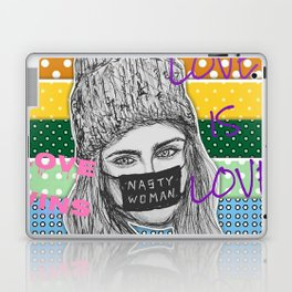 (Cara Delevingne - LGBT) - yks by ofs珊 Laptop & iPad Skin