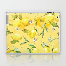 Watercolor lemons 5 Laptop & iPad Skin