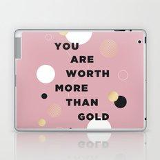 more than gold Laptop & iPad Skin