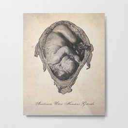 Fetus In Utero Human Anatomy Illustration Metal Print