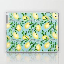 Lemon mood.1 Laptop & iPad Skin