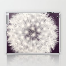 A Delicate Tethering Laptop & iPad Skin