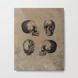 Skull View - Antique Vintage Style Medical Etching Metal Print